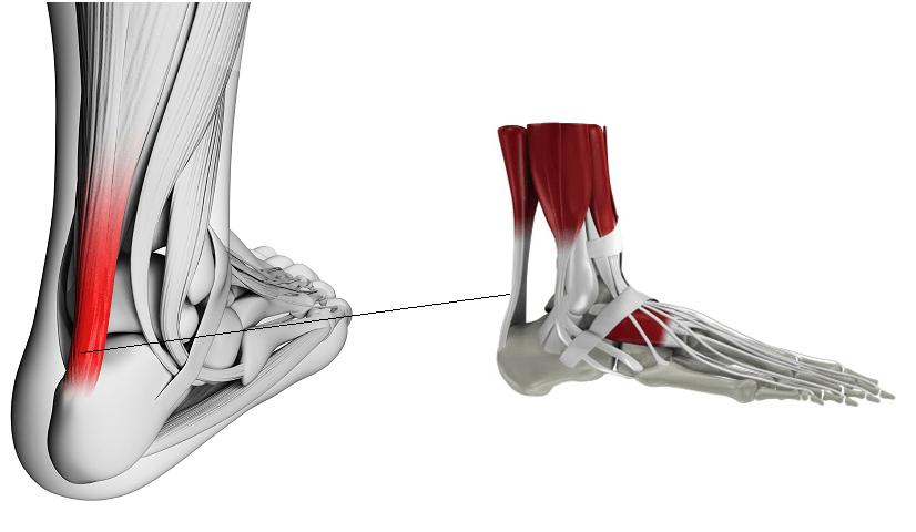 Panturrilha Aquiles da dor ruptura de após no músculo a